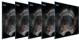 ANNAcTRUS Prostatakrebs Diagnostik - Ultraschallaufnahmen mit Landmarks bei Krebs verdächtigem Prostatagewebe mehrerer Jahre im Vergleich